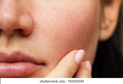 pores on the face