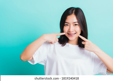 Portrait of Asian teen beautiful young woman smile have dental braces on teeth laughing point finger her mouth, studio shot isolated on a blue background, Medicine and dentistry concept