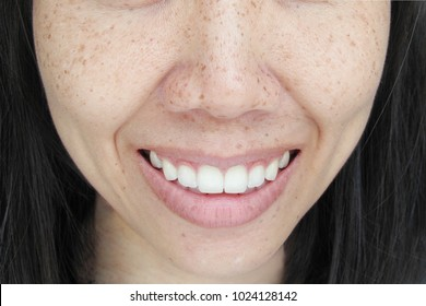Portrait Asian  Woman Smiling face with freckles and dimple on cheeks