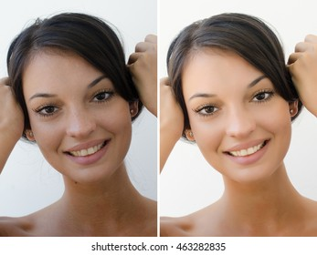 Portrait of a beautiful brunette girl before and after retouching with photoshop. Bad photo vs good photo, acne beauty treatment. Isolated on white background. Edited photos being compared.