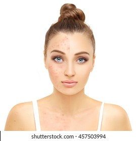 Portrait of beautiful girl  with problem and clear skin