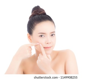 Portrait of beautiful woman asian is a acne, zit treatment, girl problem beautiful face, beauty perfect with wellness isolated on white background with skin healthcare concept.