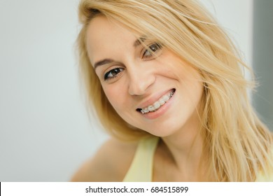 Portrait of a beautiful woman with braces on teeth.Smiling girl with dental braces.Happy smiling woman with braces. Portrait Of Beautiful Happy Woman With Perfect White Smile. Dental Health Concept.