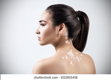 Portrait of beautiful woman with vitiligo.