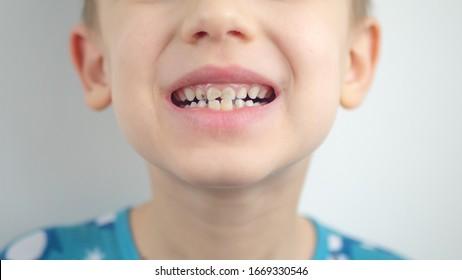 Portrait of a boy in pajamas, bad teeth, closeup.