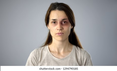 Portrait of bruised woman looking at camera, domestic violence victim, awareness