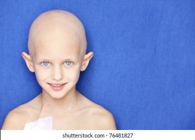 portrait of a caucasian child without hair due to chemotherapy treatment