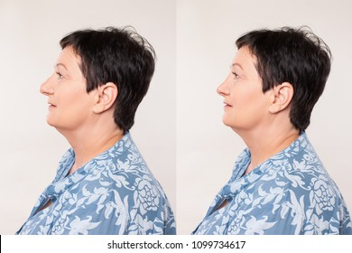 Portrait Caucasian Woman Comparing Before and After Rhinoplasty (Nose Operation). Beautiful Portrait of a Woman in age in Profile after a Nose Surgery