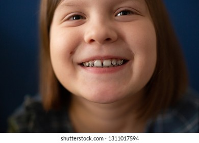 Portrait of a child girl with a bracket on the teeth on a blue background, the concept of pediatric dentistry, correcting the bite