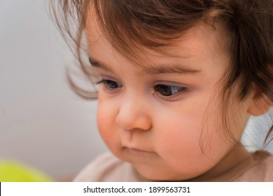 Portrait of a child with a runny nose and conjunctivitis. A child suffers from purulent conjunctivitis.