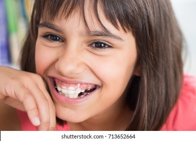 Portrait of a cute girl laughing wearing a removable orthodontic appliance