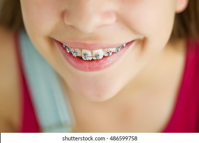 Portrait of cute kid with dental braces smiling.