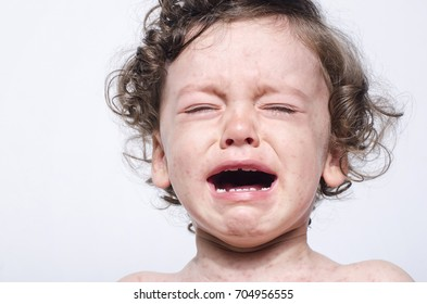 Portrait of a cute sick baby boy crying. Adorable upset child with spots on his face and body.
