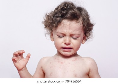 Portrait of a cute sick baby boy crying looking down to his spots. Adorable upset child with spots on his face and body.