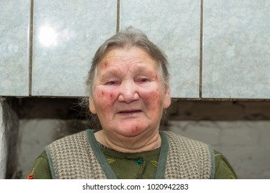 Portrait of an elderly country woman or grandmother with an allergic rash on her face