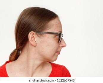 portrait of a girl without makeup. acne on the face. on a white background