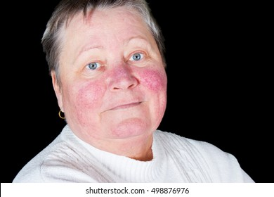 Portrait of happy and smiling senior woman with rosacea skin desease in photo studio isolated on black background