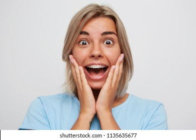 Portrait of happy surprised young woman with blonde hair and braces on teeth looks excited and touching her cheeks by hands isolated over white background