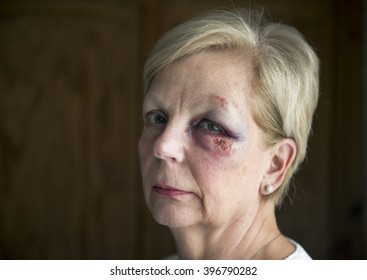 Portrait image of a mature woman with a bruised and swollen eye