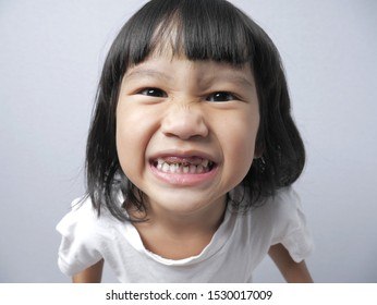 Portrait of little Asian girl smiling shows her tooth decay, kid with bad dental condition
