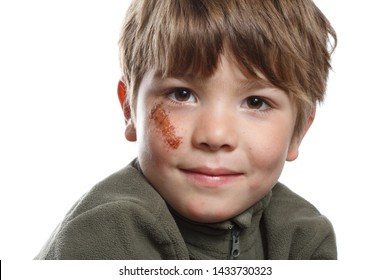 Portrait of a little boy with a big abrasion on the cheek under the eye. Isolated on a white background.