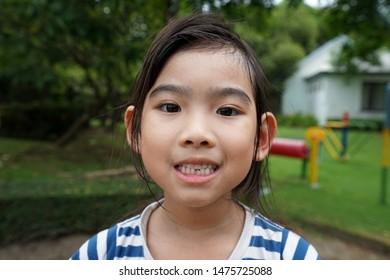 Portrait little girl Asian Broken front teeth