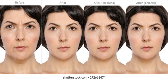 Portrait of middle aged woman before and after cosmetic surgeon in long term - 3 and 6 months after