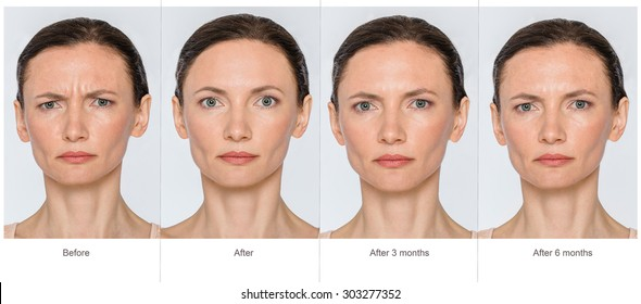 Portrait of middle aged woman before and after cosmetic surgeon or plastic surgery in long term - 3 and 6 months after treatment. Illustration after lips volume injection, botox, blemishes removal.