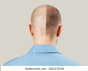 Portrait of nape of young guy Before-after hair transplantation. Young guy before and after haircut to zero. Isolated on light gray background.
