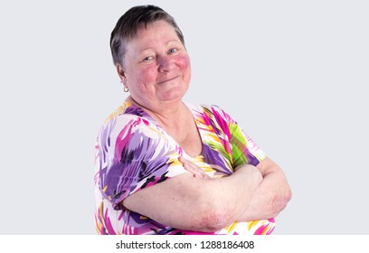Portrait of smiling elderly woman facing two skin diseases as rosacea and psoriasis vulgaris, no make-up