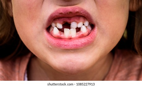 Portrait of toothless child girl missing milk and permanent teeth. Closeup of young kid with teeth gaps and growing permanent teeth and healthy gums posing outdoors in nature.