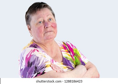 Portrait of unhappy elderly woman facing two skin diseases as rosacea and psoriasis vulgaris, no make-up