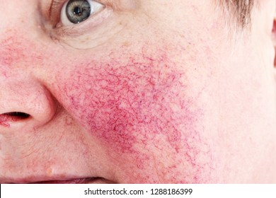 Portrait of unhappy elderly woman suffering skin disease rosacea with no make-up