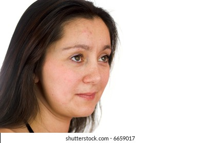 Portrait of upset woman with acne looking away with hope isolated on white