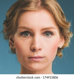 Portrait of a woman before and after botox. Young and old face.