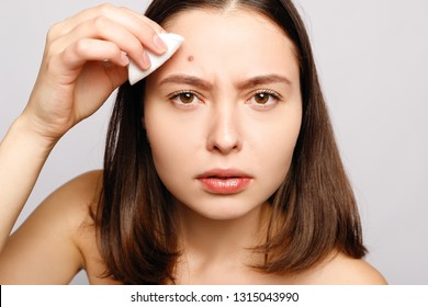Portrait of young attractive woman touching her face and looking for acne. Headshot of displeased young woman looking with painful face at the camera while squeezing pimple on her forehead.