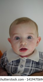 Portrait of a young baby boy suffering with atopic dermatitis