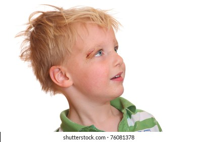 Portrait of a young boy with a scrape near his eye
