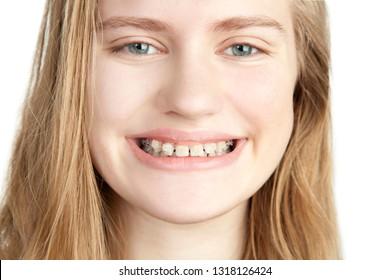 Portrait of a young girl with braces. On a white background, close-up. Studio photography.
