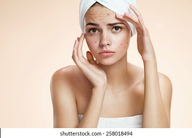 Portrait of young girl with chickenpox varicella zoster virus, with a sadness. Beautiful young Caucasian female model