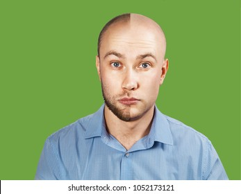 Portrait of young guy Before-after hair transplantation. Young guy before and after haircut to zero. Isolated on green background.