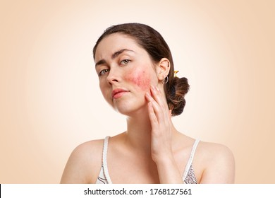 Portrait of a young pretty Caucasian woman who frowns and shows reddened and inflamed cheeks. Beige background. Copy space. The concept of rosacea, healthcare and couperose