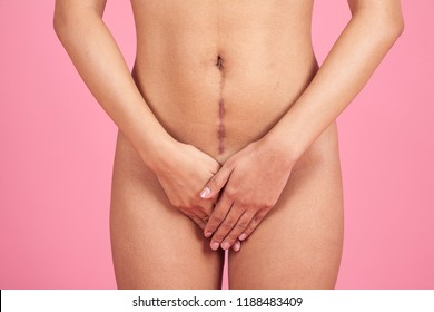 Portrait of young woman with large scar after surgery on abdomen on pink background. care beauty medical and scars removal concept