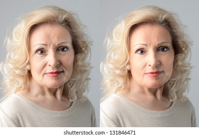 portraits mature woman before and after anti-wrinkle treatment