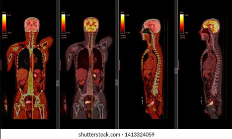 Positron Emission Tomography or PET CT Scan of Human Body (High Resolution)