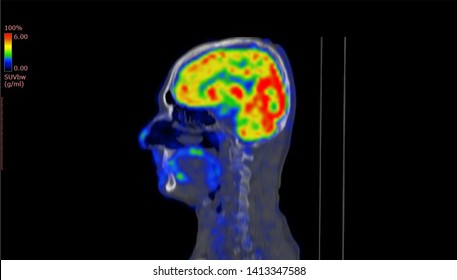Positron Emission Tomography or PET CT Scan of Human Brain (High Resolution)
