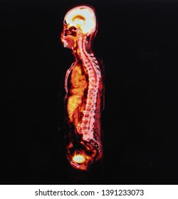 positron emission tomography or PET image of the whole body showing function of many organs in the body such as brain heart lung liver and intestines.
