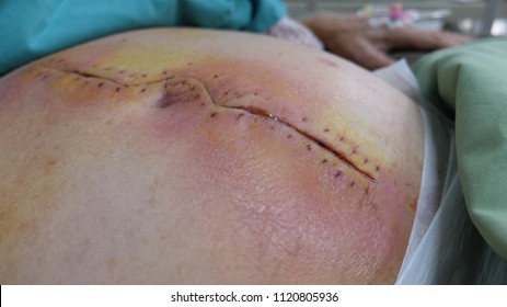 Post Operative Wound Infection with signs of Inflammation.