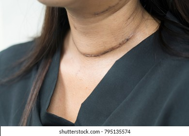 Post surgical scar on woman neck after thyroid surgery