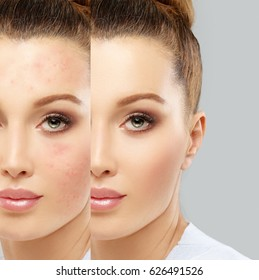 Post-Acne Marks /Treating Acne Scars.